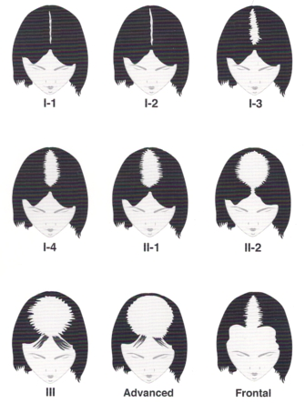 Ludwig Scale of Female Hair Loss