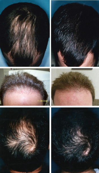 Male Hair Loss Before and After Photos