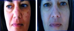 dermatology before and after photos brown spots