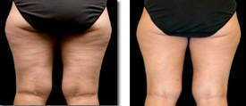 dermatology before and after photos cellulite hips
