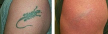 beforeaftertattooremovallaser