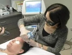 Lasers to help skin after menopause