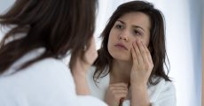 bruising with fillers