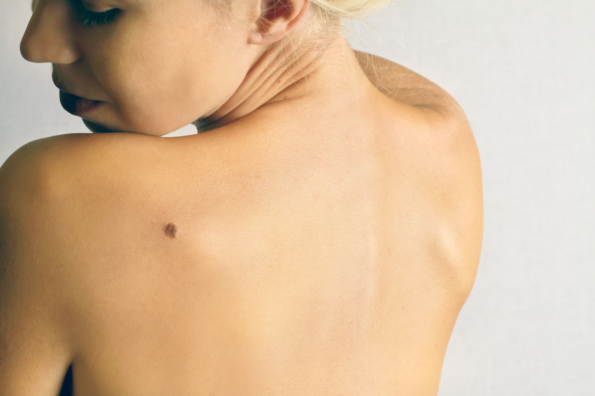 What you need to know about moles lumps and bumps on skin by Dr. Brandith Irwin on SkinTour