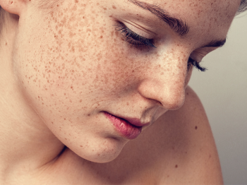 Possible laser treatment for melasma