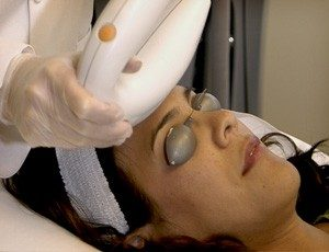 Best Laser for Acne Scars
