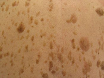 Seborrheic keratoses on back - causes and treatments