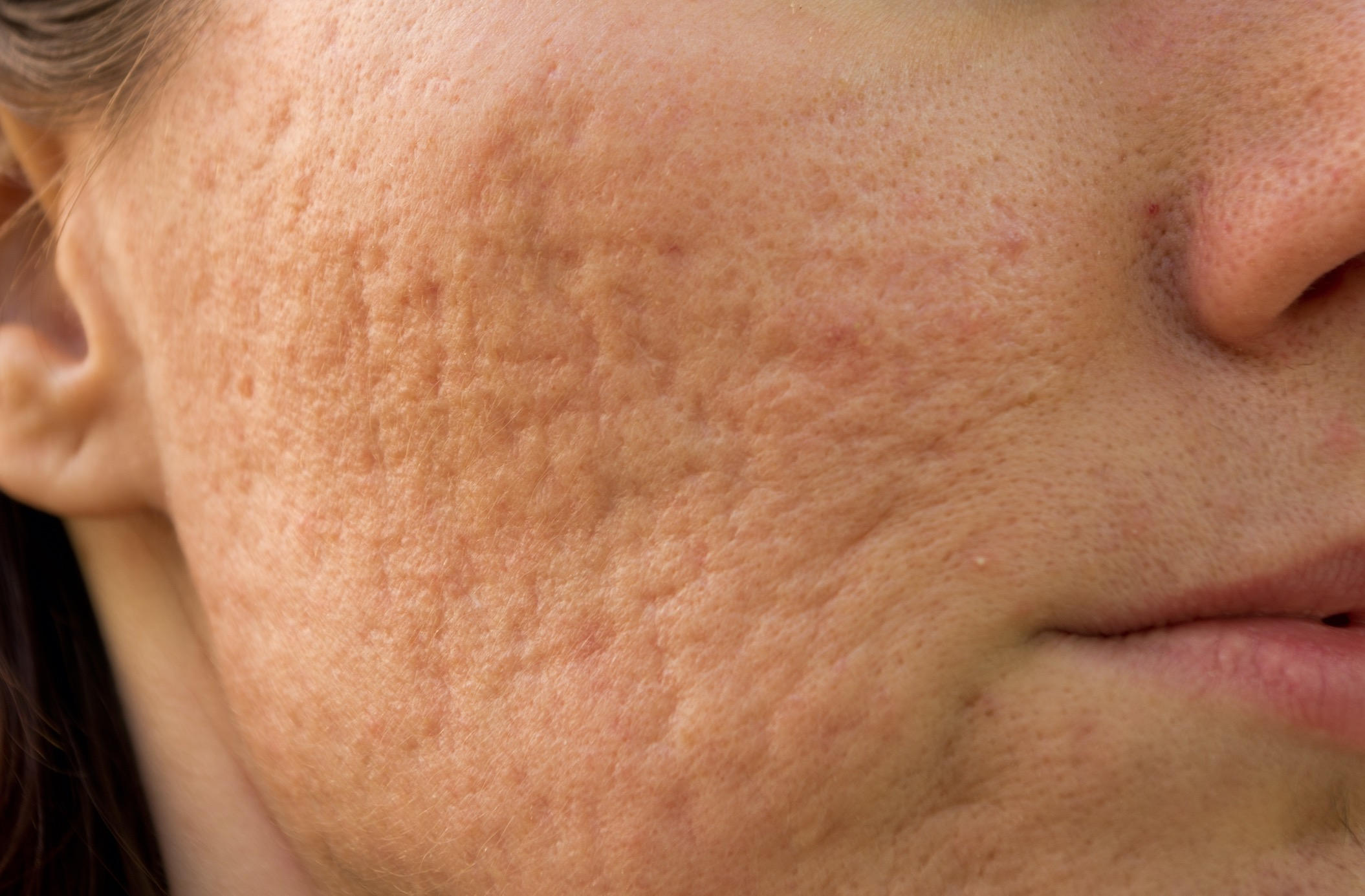Face scars from acne and picking - finding a treatment plan that actually works - by Dr. Brandith Irwin on SkinTour