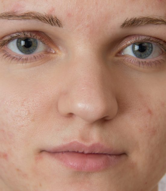 Accutane and acne Dr. Irwin answers on skintour