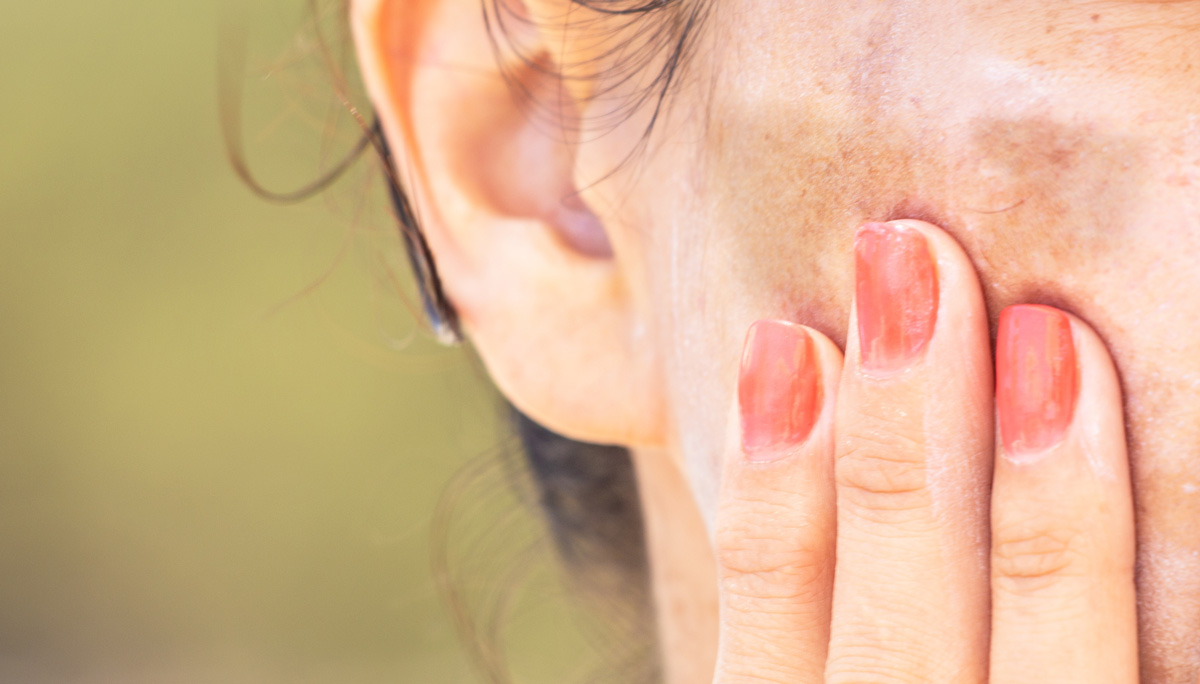 How do I treat melasma if it seems to be getting worse? Dr. Irwin answers on SkinTour skin care blog